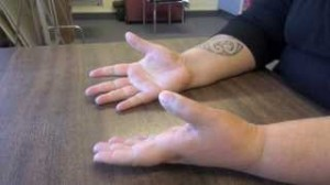 Feldenkrais & Mirror Therapy for Stroke Patients
